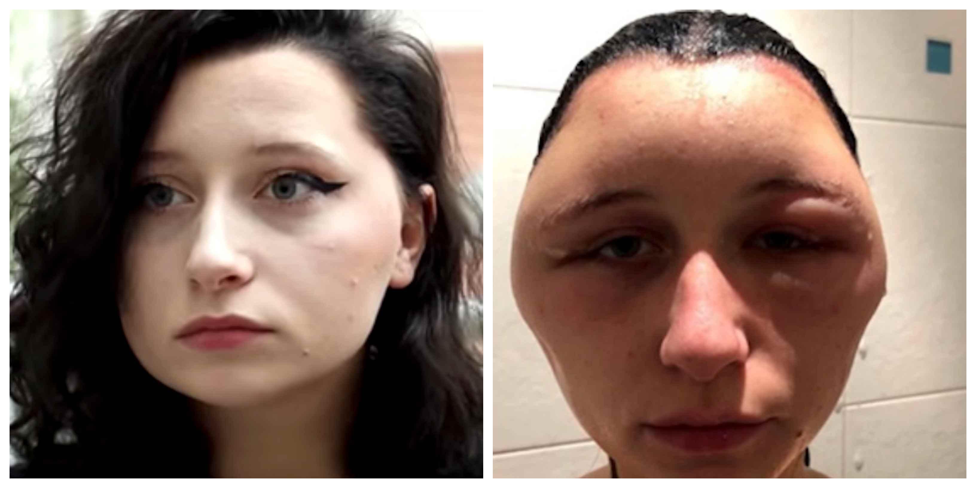 allergisk mot hårfärg